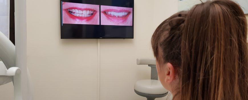 Usura dei denti ed erosione dentale